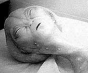 Autopsia a Extraterrestre 3